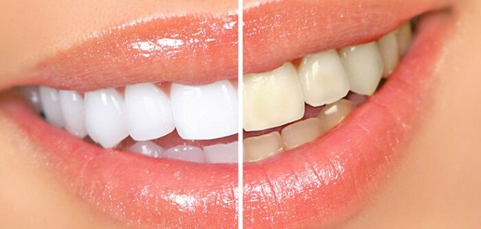tooth whitening, before and after